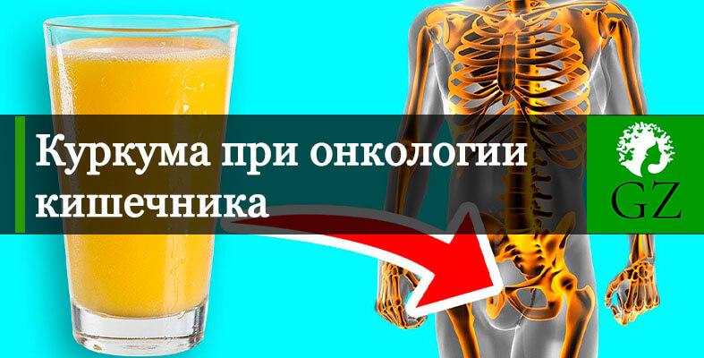 Куркума-при онкологии кишечника
